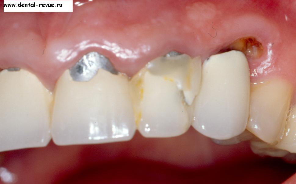 кариес корня зуба фото